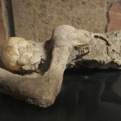 One of the body casts