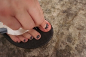 Hayley's poor toe!